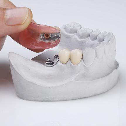 Τεχνητές Οδοντοστοιχίες